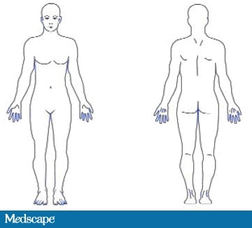 Nursing Skin Assessment http://www.medscape.com/viewarticle/705679_2
