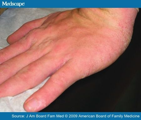 The gallery for --> Mild Dermatitis On Hands