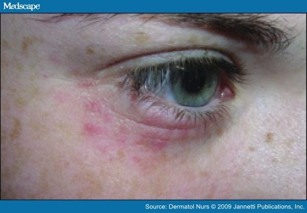 Heavy Metal Detox - Rash under left eye