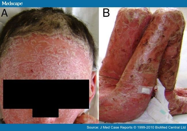 The areas affected by plaque psoriasis may join together symmetrical masses spread over extensive areas of the skin 2