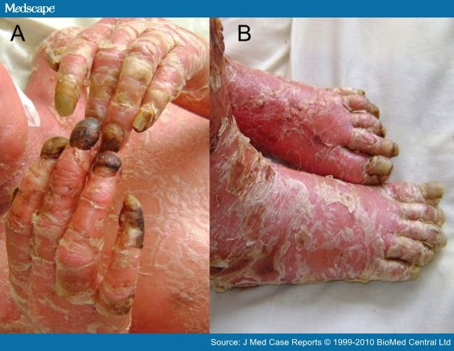 Erythrodermic psoriasis of the few skin-condition emergencies, it is a rare but very serious complication of psoriases 3