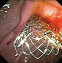 ERCP Biliary Stent http://www.medscape.org/viewarticle/729424_6
