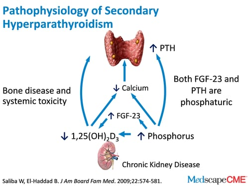 hyperparathyroidism secondary