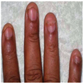 Leprosy Clinical Features | RM.