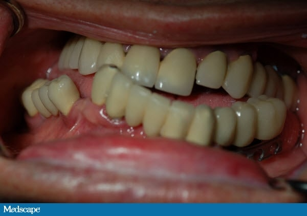 Malocclusion Class Ii. The class 3 malocclusion and
