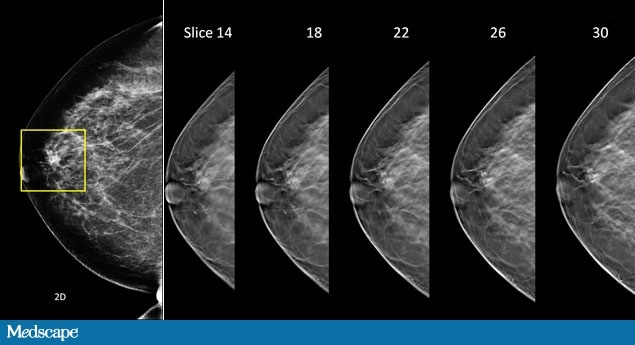 hologic breast tomosynthesis course Hologic has always been at the forefront of breast cancer screening and offers  the first breast tomosynthesis technology with proven superior clinical.