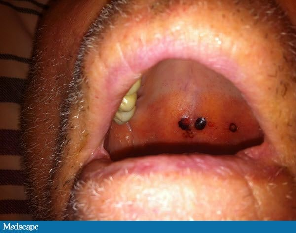 Pictures of Hard Palate Cancer http://www.medscape.com/viewarticle/740682