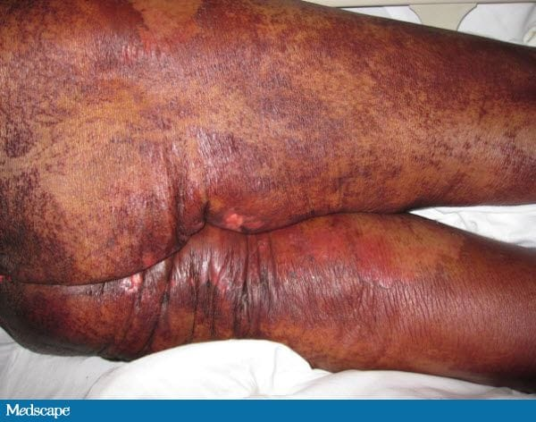 Dermatitis, Diarrhea and Alopecia: What Is Your Diagnosis? 742325-Figure-2