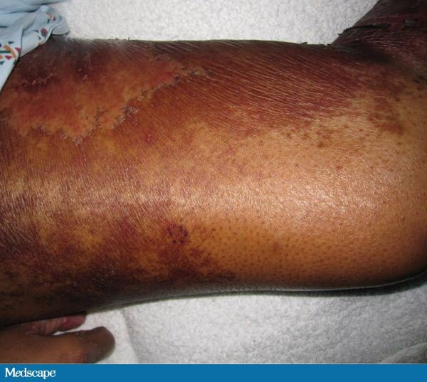 Dermatitis, Diarrhea and Alopecia: What Is Your Diagnosis? 742325-Figure-3