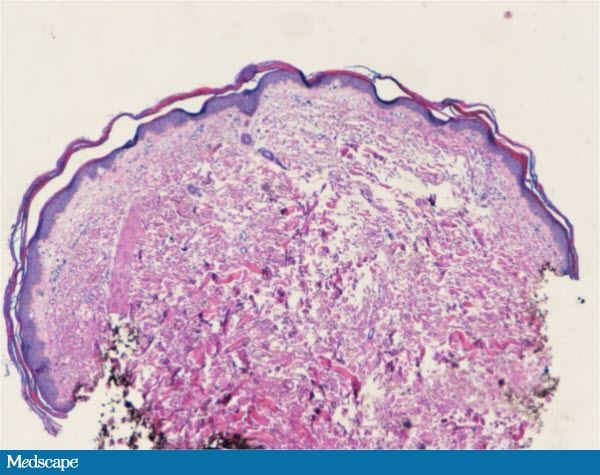 Dermatitis, Diarrhea and Alopecia: What Is Your Diagnosis? 742325-Figure-6