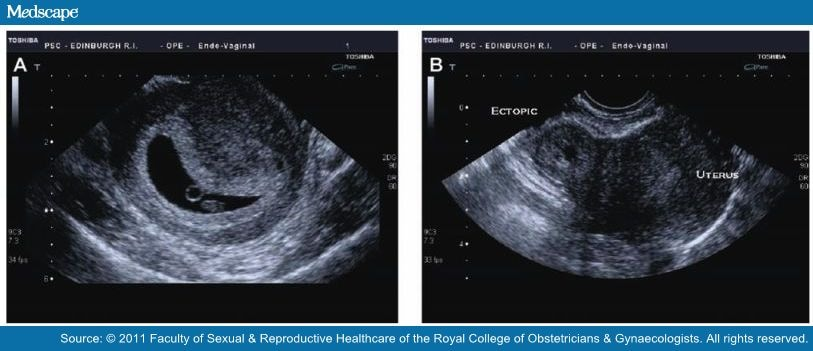 Diagnose: How To Diagnose Ectopic Pregnancy