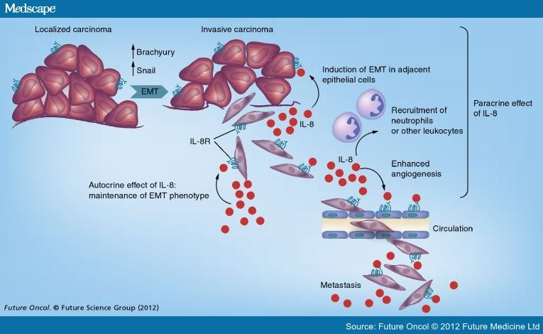 Epithelial Mesenchymal Transition And Tumor Microenvironment