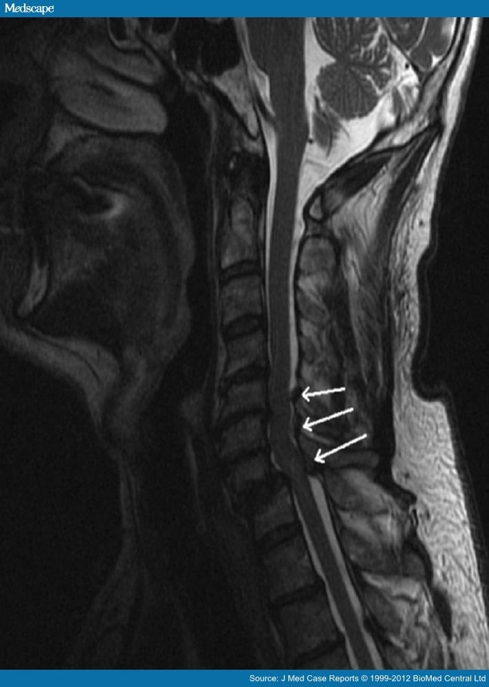 what is retrolisthesis of c4 on c5 The grading system is measured from grade 1 retrolisthesis of c4 on c5 – youtube neck pain, disc herniation of the cervical spine – everything you need to know.
