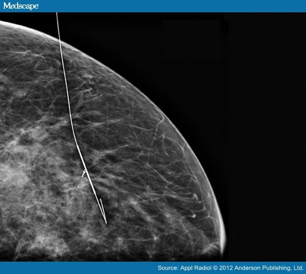 breast tomosynthesis and digital mammography a comparison of diagnostic accuracy
