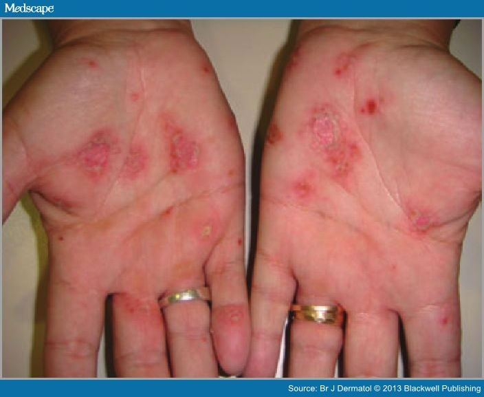 I was diagnosed with Palmar Pustular Psoriasis recently 1