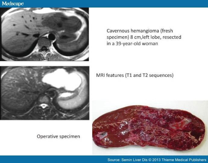 Diagnosis and Management of Benign Liver Tumors