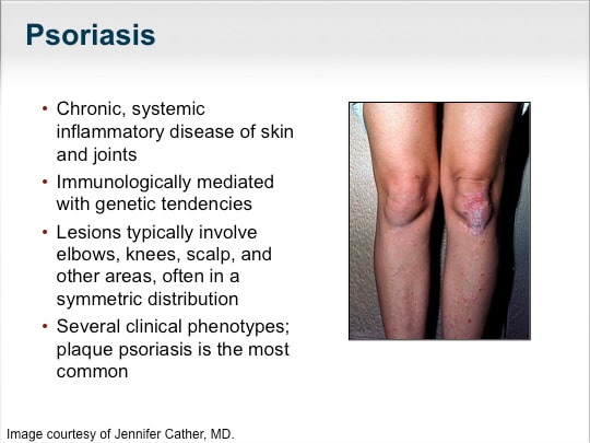 This article outlines the assessment and management of psoriasis in the general practice setting 2