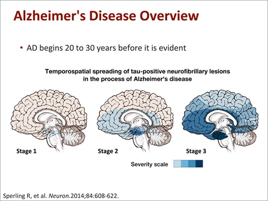 a description of alzheimers disease Webmd provides an overview of alzheimer's disease and what causes it.