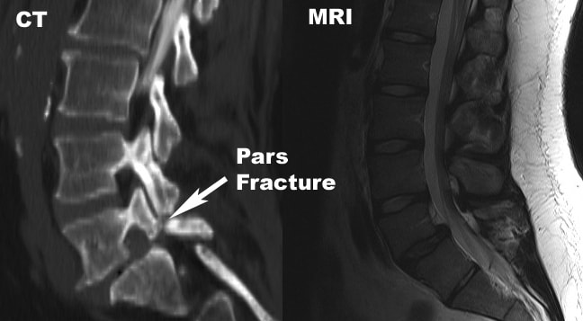 mri spondylothesis pictures Severe spondylolisthesis undetected by recumbent mri mri images to them she was told the images showed nothing that could account for her symptoms and that.