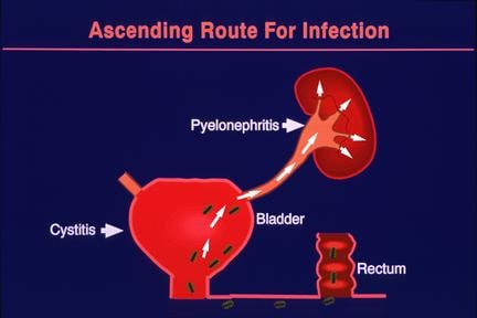 Can A Silent Kidney Infection Or Genetic Predisposition