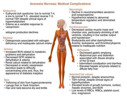 the causes symptoms complications and treatments for anorexia nervosa an eating disorder See full list of 78 symptoms of anorexia nervosa treatments more complications» causes of anorexia nervosa from an eating disorder called anorexia nervosa.