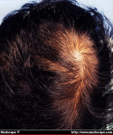 anavar effects on hair loss