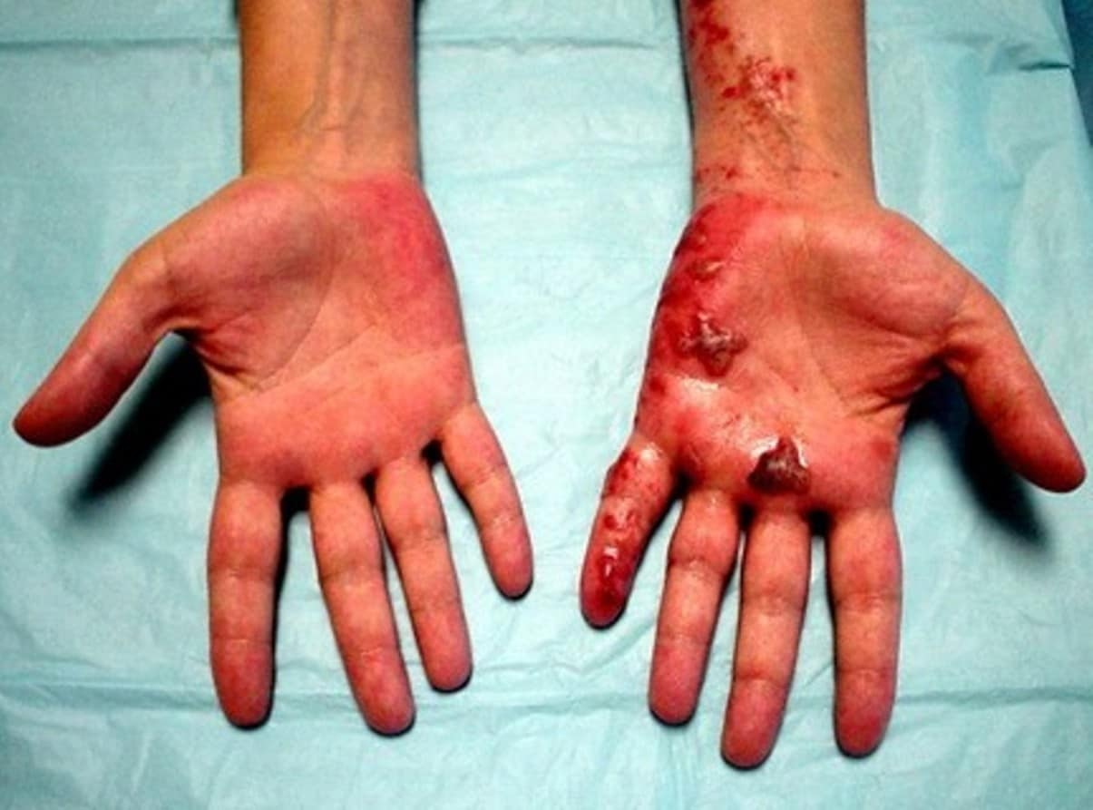 lesions on hands #11