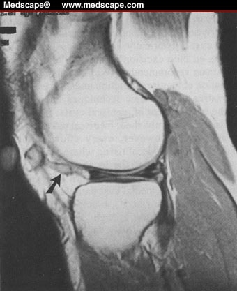 Meniscus Pain After Surgery