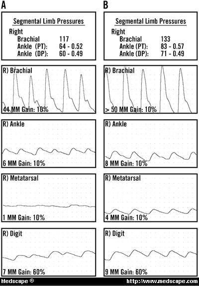 Lower Extremity Arterial Doppler Waveforms