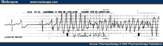 Diflucan qt interval - S fluoxetine on