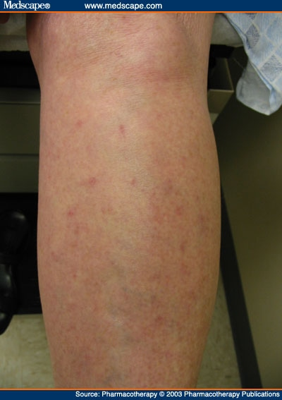 Skin Rashes On Legs