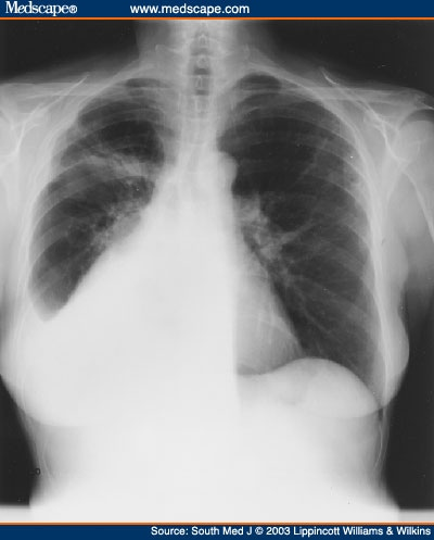 Chest x-ray obtained at initial presentation showing right upper lobe