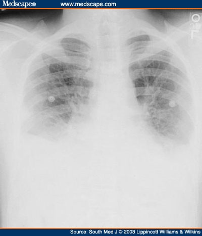 Chest x-ray showing bilateral pleural effusions at time of second hospital
