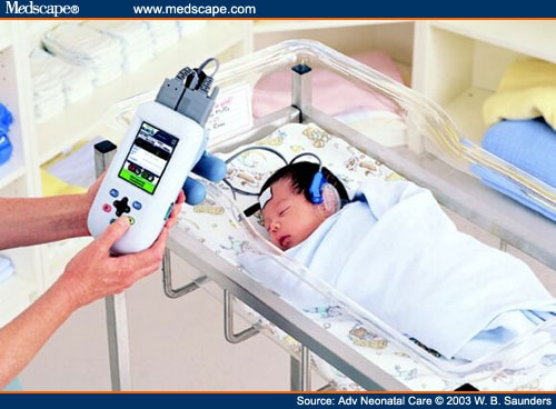 Newborn Hearing Screening and Early Hearing Detection