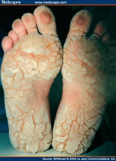 Palmoplantar pustulosis: Epidemiology, clinical features ...