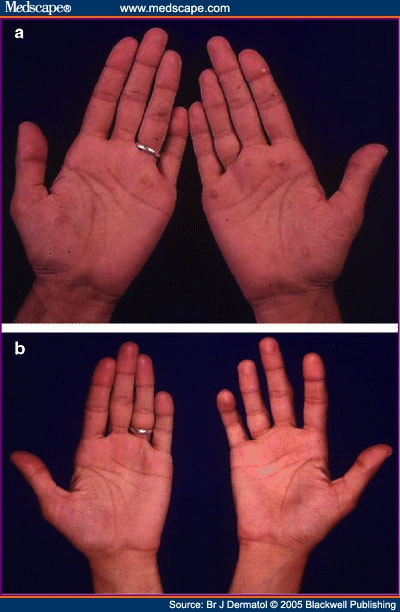 Warts On Fingers. Finger Warts Treatment