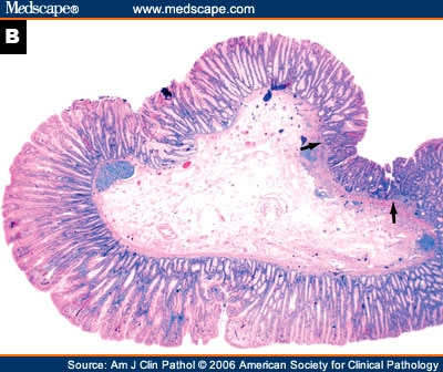 Sessile Serrated Adenoma Dysplasia Sessile Serrated Adenoma