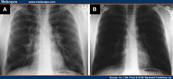 tuberculosis x ray. (B) Follow-up chest X-ray
