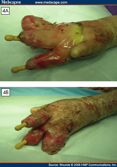 Denuded wound Nude Photos 54