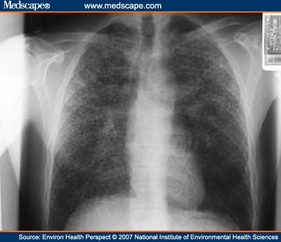 tuberculosis x ray. Postero-anterior chest X ray