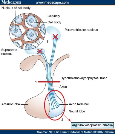 Diabetes Insipidus as a Complication after Pituitary Surgery ...