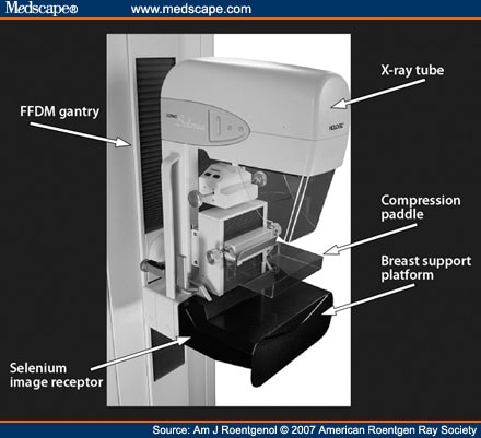 tomosynthesis mammography equipment At moreton bay radiology radiology we use digital mammography equipment breast tomosynthesis: a 3d mammogram (genius.