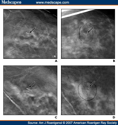 digital breast tomosynthesis hologic