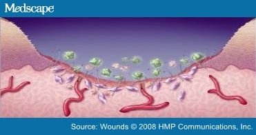 A Review of Collagen and Collagen-based Wound Dressings: Abstract ...