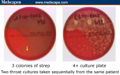 Strep culture criteria boobs