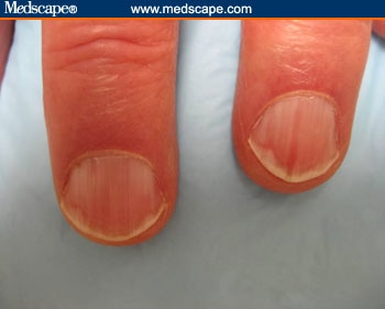 Nails And Vitamin B12@^* B12 Deficiency Nails