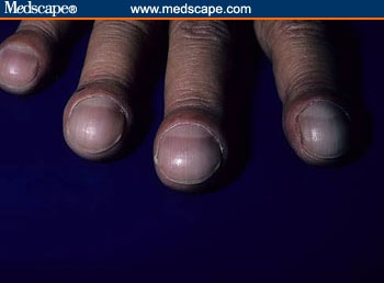 Causes Of Peeling Nails | LIVESTRONG.COM