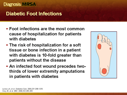 diabetic foot infections