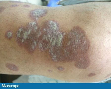 This is plaque psoriasis, the most common form of the disease 3