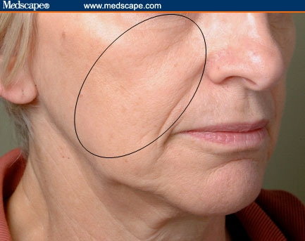 Changes associated with scleroderma facial Early